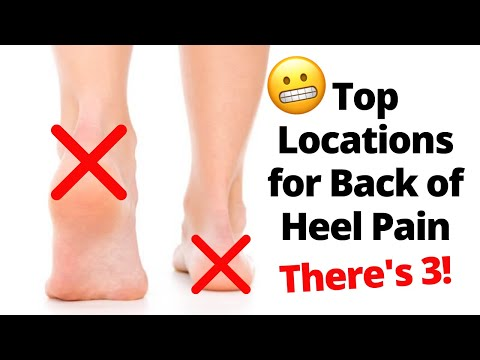 back-of-the-heel-pain:-locations