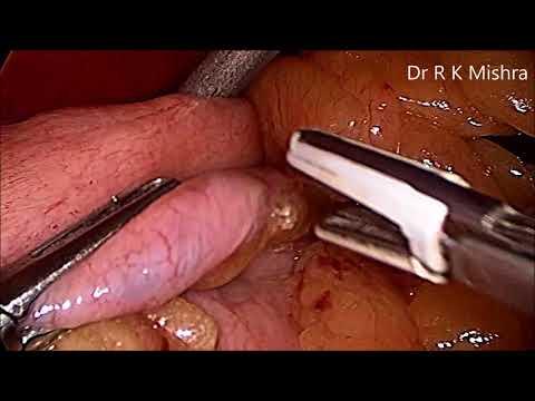 laparoscopic-sleeve-gastrectomy-surgery-video-explained-step-by-step