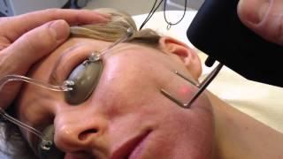 Co2 FRx fakcni laser MedArt