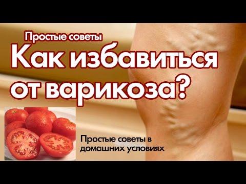 Варикоз вен на - simptomy-