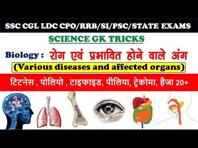 science gk tricks: Organs affected by various diseases |  विभिन्न रोगों से प्रभावित होने वाले अंग