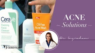 How To Get Your Acne Cleared and Keep Under Control