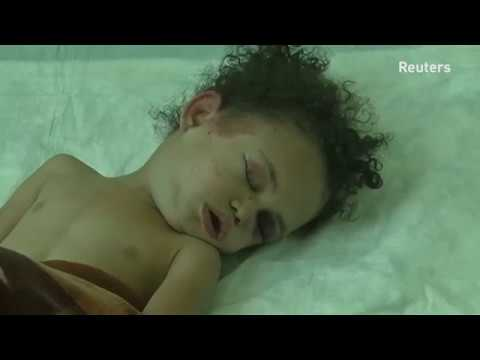 Injured girl sparks campaign highlighting Yemen's humanitarian crisis