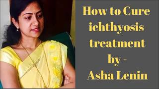 How to Cure Ichthyosis treatment |Tamil Health Plus | Asha Lenin