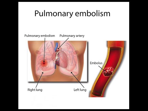 pulmonary embolism - youtube, Skeleton