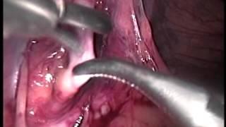 Grado radiología varicocele 3