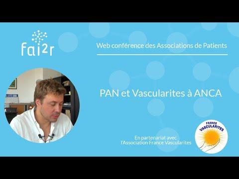 Web conférence sur la périartérite noueuse et les vascularites à ANCA