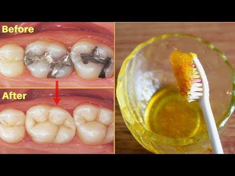 एक बार में दांत का कीड़ा और दर्द बाहर निकालने का बेहतरीन उपाय - How To Get Rid Of Tooth Cavity