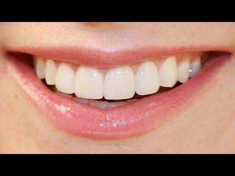Как и можно ли восстановить зубную эмаль?