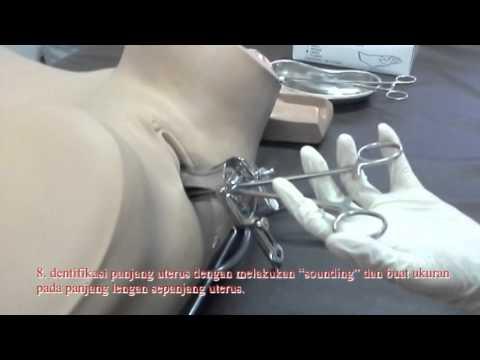 Video KKD   Pemasangan IUD Modul Reproduksi