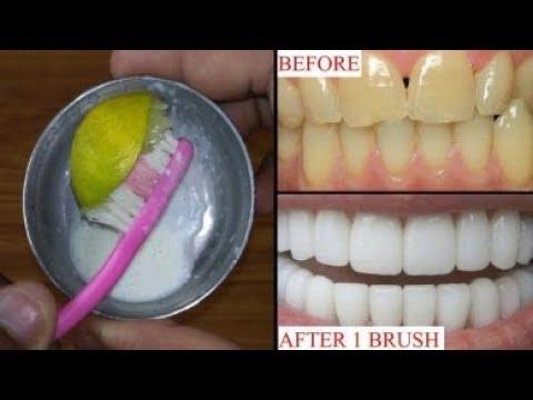 فركت بها اسناني فاصبحت بيضاء كاللؤلؤ اسرع خلطة لتبييض الاسنان وتلميعها بقوة لن تخجلي من ابتسامتك Youtube