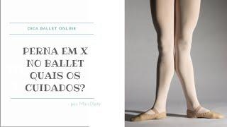Perna em X no Ballet e seus Cuidados