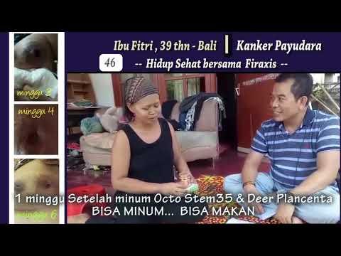 Cara Mengobati Kanker Payudara Stadium 4 Secara Alami ...
