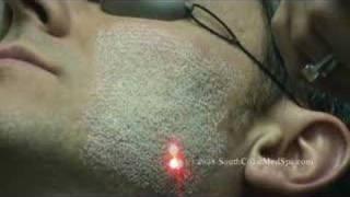 Laser Skin Resurfacing for Acne Scar Removal