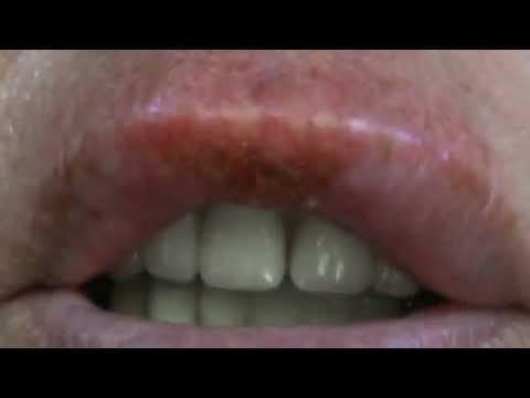 Первые симптомы рака губы. Как проявляется рак губы?