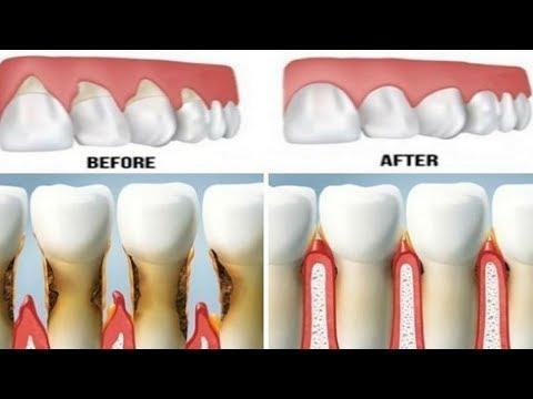 Good Bye Dental Implants Grow Your Own Teeth in Just 9 Weeks