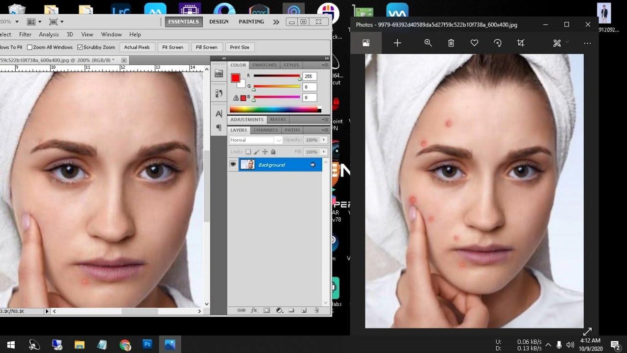 Cara Menghilangkan Jerawat Dengan Photoshop Site Youtube Com