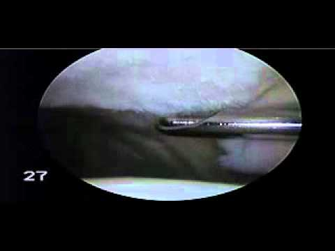 chondroplasty patella for chondromalacia patella - dr. steven, Skeleton