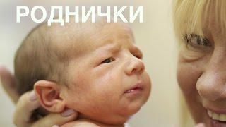 Роднички новорожденного - Часть 2 || ОВП(В этом видео Вы узнаете, как и когда закрываются роднички. Это видео продолжение темы