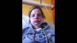 Mon opération maxillo faciale Avril 2013 avant/après