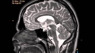 MRT Scan My Brain