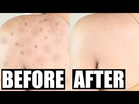 hqdefault - How To Get Rid Of Pimples Scars On Your Back