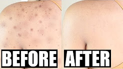 hqdefault - Back Acne Scarring Before And After