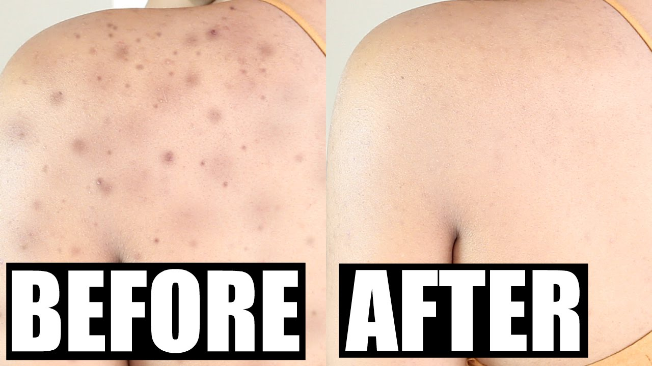 How To Get Rid Of Acne Scars Permanently Skinovative Demo Review Beautybygenecia Youtube