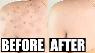 How Get Rid Acne Scars Permanently