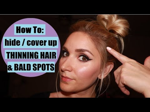 How To Hide THINNING HAIR / BALD SPOTS with eyeshadow ...