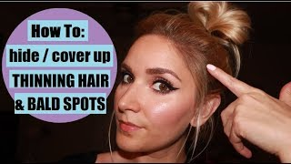 How To Hide THINNING HAIR / BALD SPOTS with eyeshadow!!!