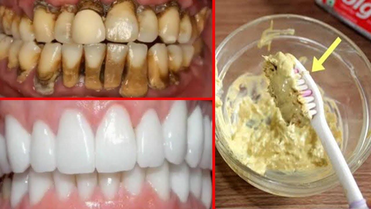 Sadece 2 DAKİKADA Evde DİŞ BEYAZLATMA - Diş Lekesi Ve Sararmış Dişler Nasıl Beyazlatılır ?