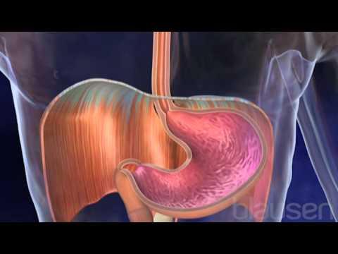 Hiatal Hernia Animation - YouTube