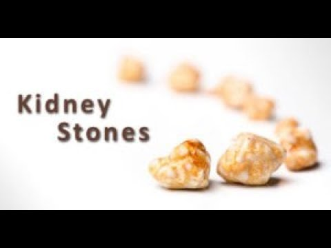 How Do Form Kidney Stonessymptomscausesrisk Factorstypes Of Kidney Stonesprevention
