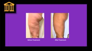 EndyMed Skin Tightening Zenith Cosmetic Clinics Thumbnail