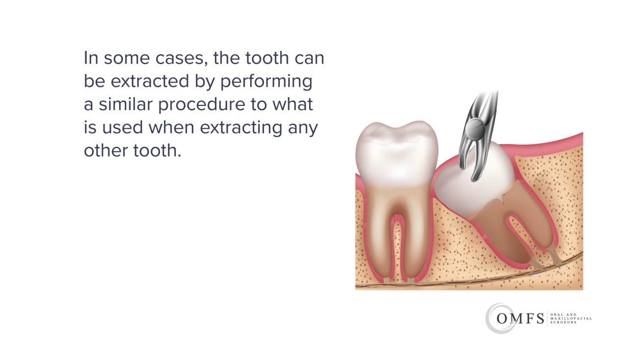 Wisdom Tooth Surgery Melbourne | Oral and Maxillofacial Surgeons