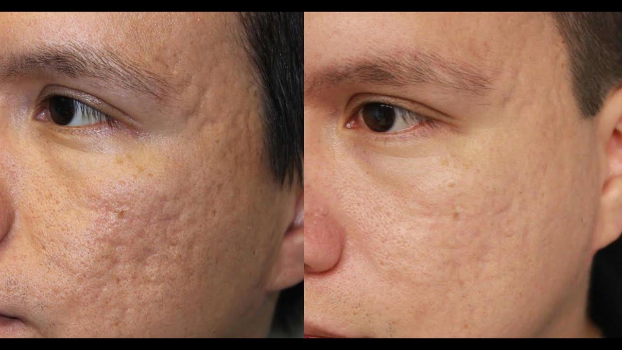 for facial scar Treatment