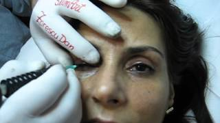 Tatuaj ochi make-up artist Zarescu Dan Clinica Slimart machiaj semipermanent ochi