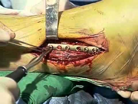 internal fixation of type b malluler fructure rt leg