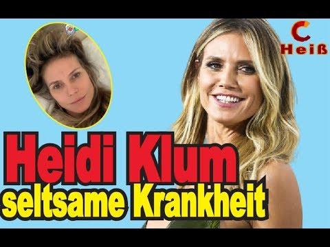 Schockierende Neuigkeiten !! Heidi Klum hat eine seltsame Krankheit. Wo ist sie jetzt ?