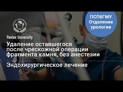 Удаление камня гибким инструментом, без анестезии | Гаджиев Нариман Казиханович, уролог-хирург