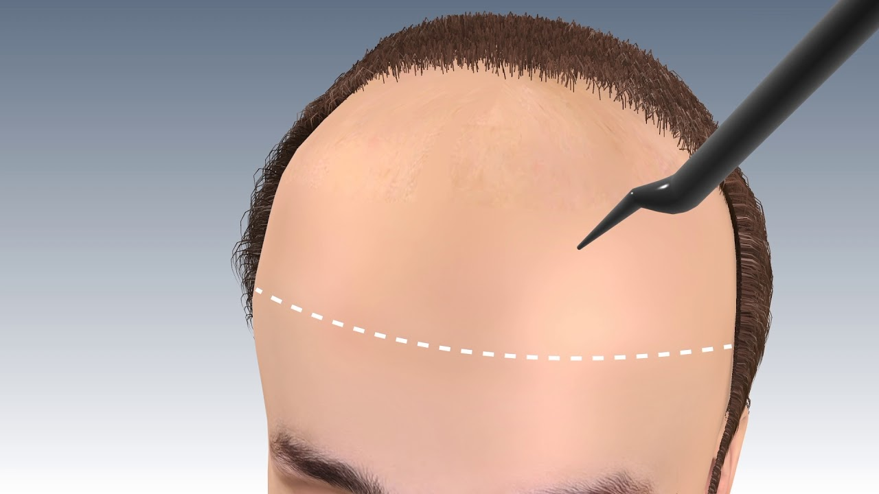 Download Step by Step FUE Hair Transplant Surgery in jaipur | Hair transplant in india | Outbloom clinics
