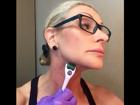 tighten-sagging-neck-skin-derma-roller