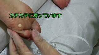 痛くないイボの液体窒素治療 by 明治通りクリニック thumbnail