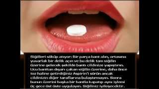 Aspirin Nedir ? Aspirinin Faydaları Nelerdir ?