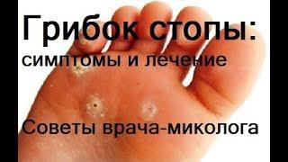грибок стопы. Симптомы и лечение грибка стопы