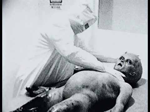 Alien Autopsy Hoax