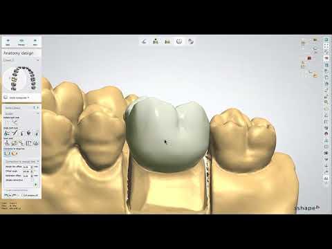 Dental Lab Life: Designing a Crown in 3Shape
