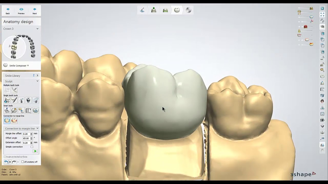 Dental Lab Life Designing A Crown In 3shape Youtube