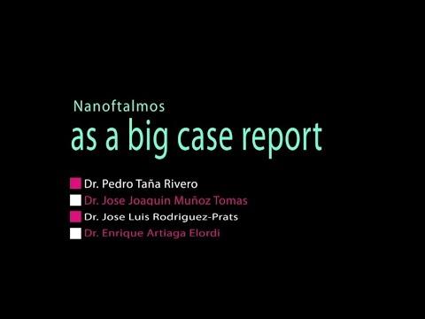 Imagen de Nanoftalmos as a big case report - Oftalvist